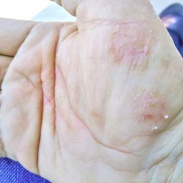The palm of a woman's hand showing signs of dry skin and eczema