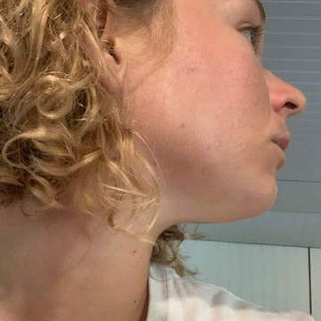 the side of a woman's face revealing skin that is free from acne