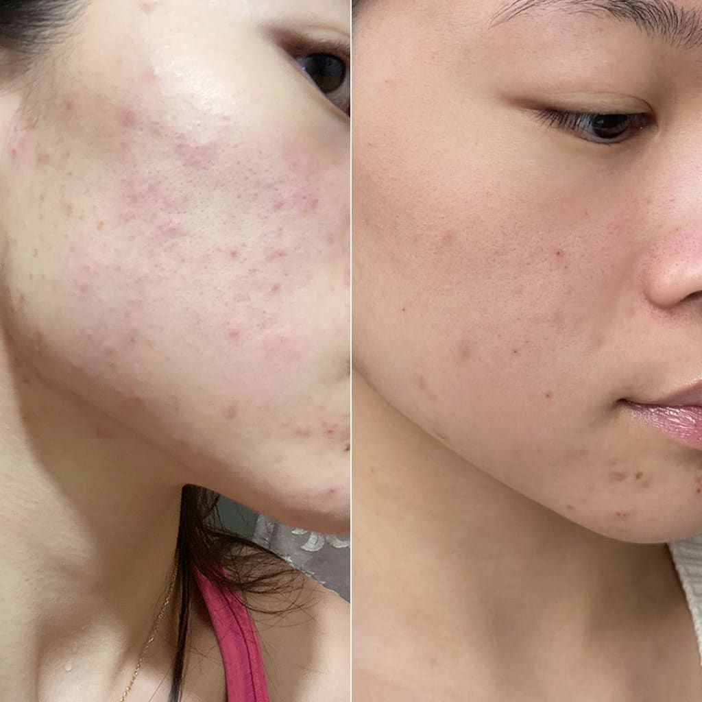 Left image is Ivana's skin before using Exfoliating jelly cleanser. Right image is her smooth skin after using exfoliating jelly cleanser.