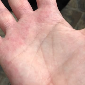 The palm of a woman's hand showing no signs of eczema after using goat milk soap