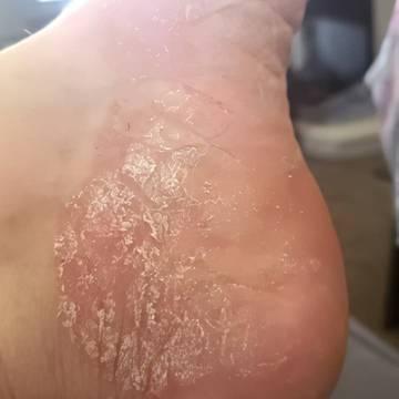 Closeup of a woman's foot showing symptoms of eczema like peeling skin